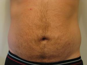 bellyfur